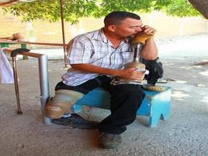 Norman Varela,  de Choluteca, Honduras besa su prótesis