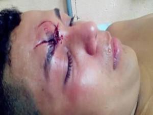 Este joven de quien no se preciso su nombre, resultó con fracturas en su rostro y fue trasladado al Hospital Escuela Universitario (HEU)