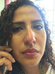 en el rostro de Suany Manzanares se ve el golpe en su ojo derecho