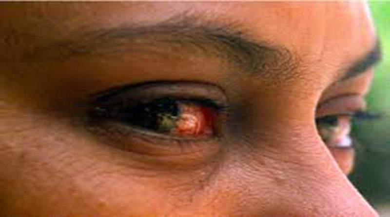 Conjuntivitis afecta a miles de hondureños