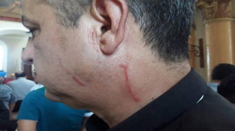 CIDH y OACNUDH condenan nuevos hechos de violencia en Nicaragua y agresiones a integrantes de la Iglesia Católica
