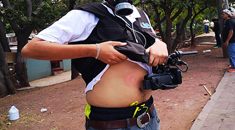 Policía dispara a camarógrafo de UNE TV