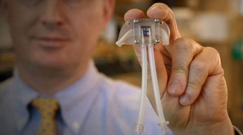 Nuevo riñón biónico les dirá adiós a las máquinas de hemodiálisis