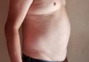 Obesidad alcanza niveles epidémicos en el siglo XXI