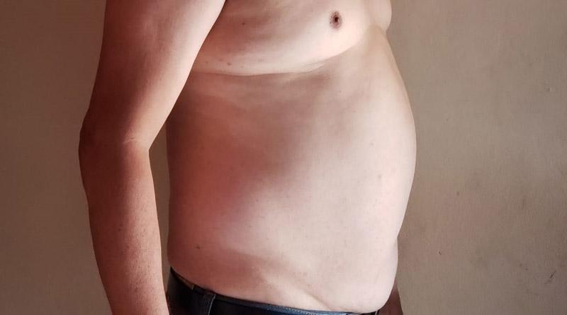 Obesidad alcanza niveles epidémicos